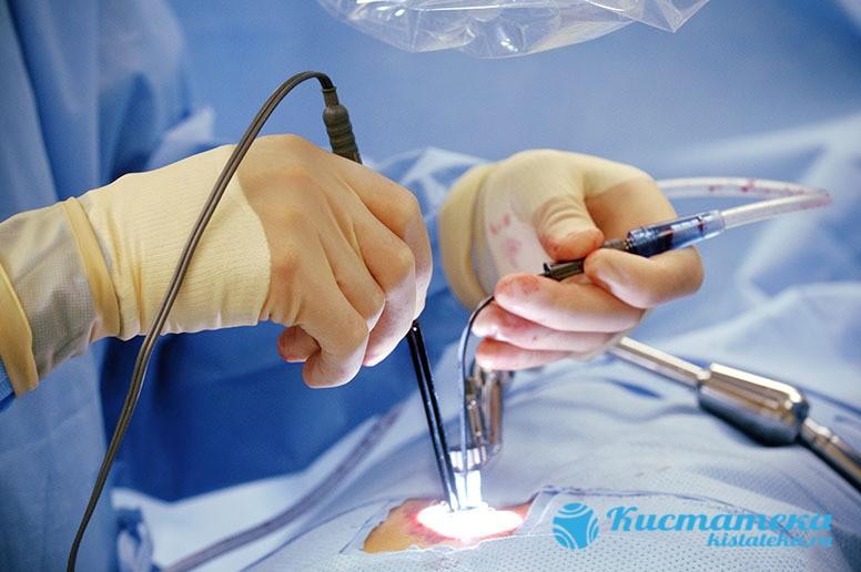 Во время операции полость удаляют без затрагивания здоровы тканей, обезболивание проводят местными препаратами