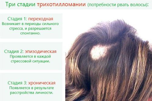 Почему у ребенка сильно выпадают волосы