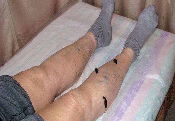 сеанс гирудотерапии