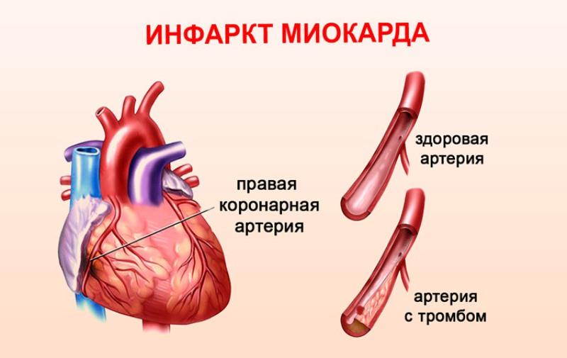 Причина инфаркта