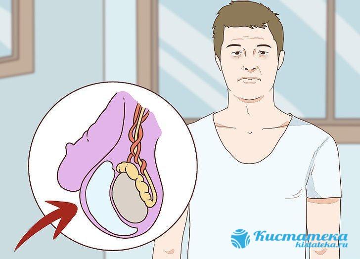 Патология яичка представляет собой увеличение мошонки за счет скопления жидкости между оболочками яичек