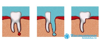 Вместе с кистой удаляют корень, внутреннюю часть зуба и часть эмали