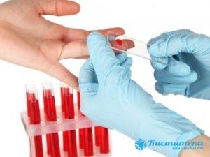 Обязательны анализы крови