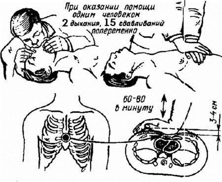 Схема наружного массажа сердца