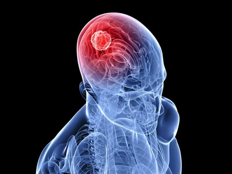 Церебральный атеросклероз сосудов головного мозга развивается и приводит к инсульту или слабоумию