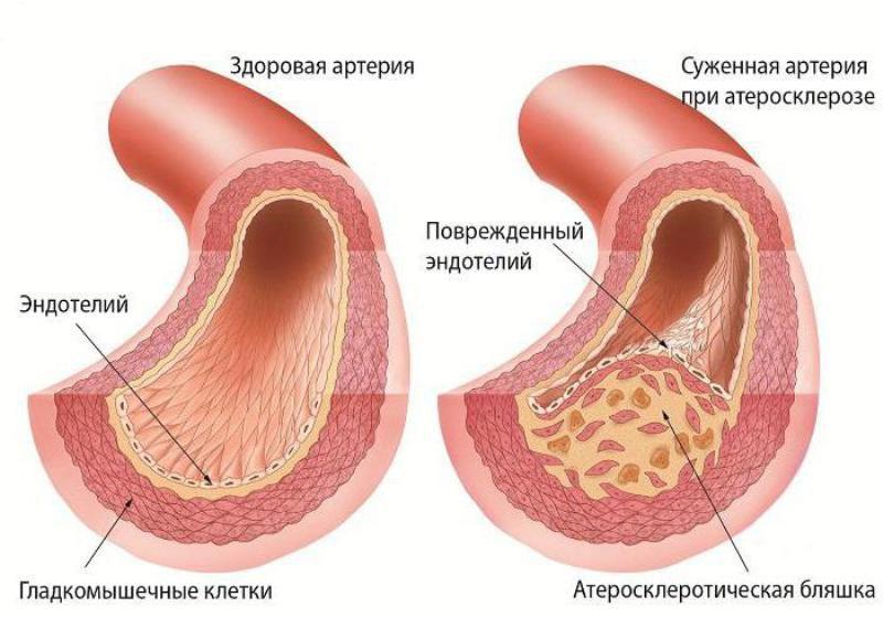 Артерия атеросклеротической бляшкой