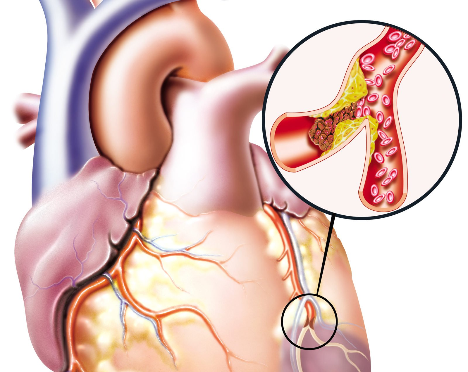 Развитие атеросклероза делится на три основные стадии