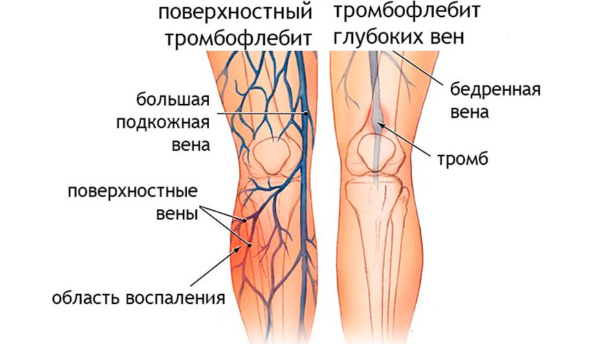 Причины возникновения тромбофлебита