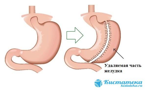 В процессе проведения гастрэктомии полностью удаляется желудок