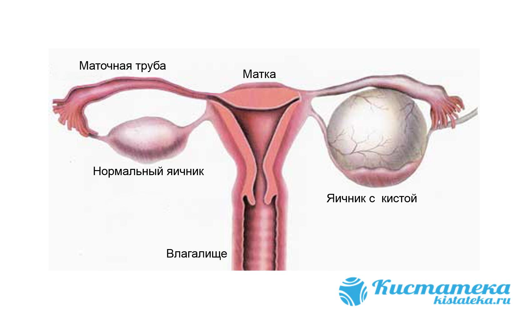 Опуоль образуется на одном или сразу дву яичника