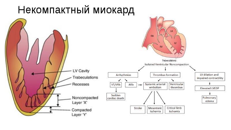 Схематическое изображение этого типа заболевания сердца