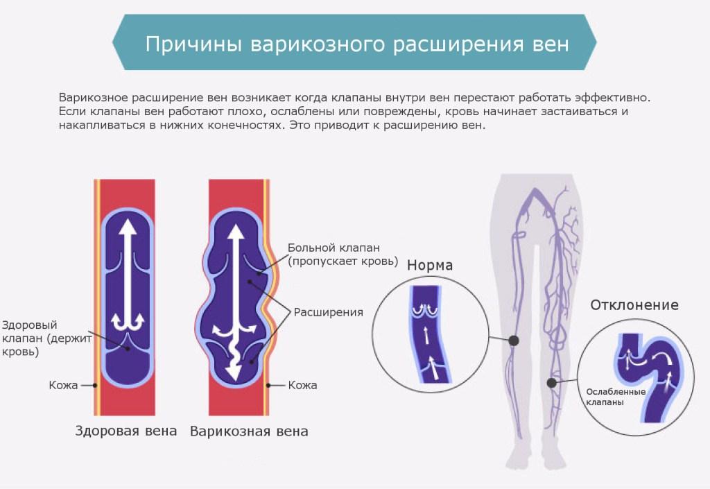 Причины развития варикоза на ногах