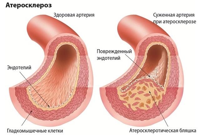 Здоровый и атеросклеротический сосуд