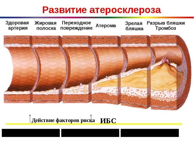 Лекарство предупреждает отложение «плохого» холестерола на стенках сосудов и развитие атеросклероза.