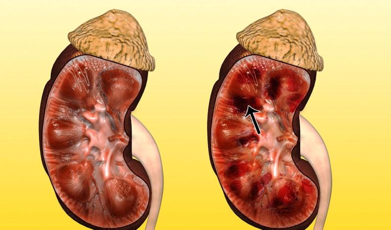Здоровая почка и почка пораженная некрозом
