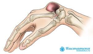 Если киста достигла большого размера, то может давить на сустав и вызывать боль