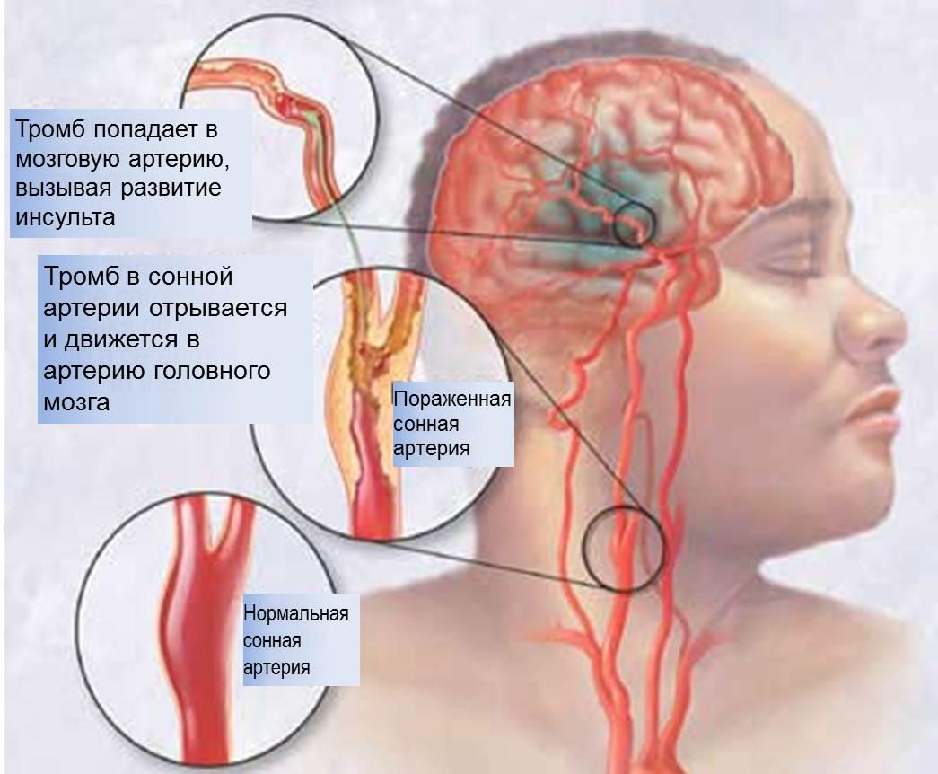 При атеросклерозе сонных артерий отмечается слабость и оцепенение тела