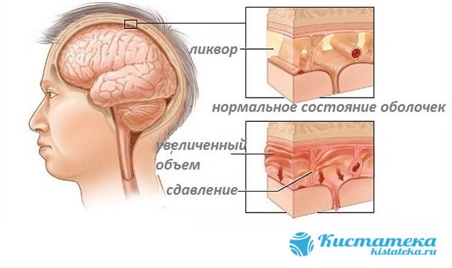При увеличении ликвора происодит дополнительная нагрузка на нервную систему