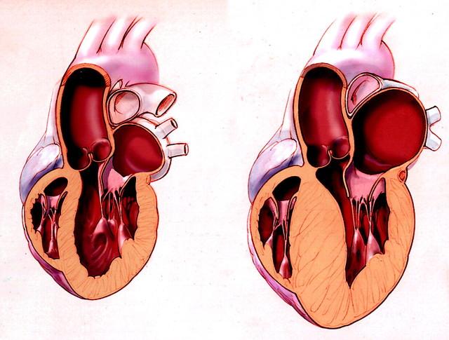Мерцание предсердий неблагоприятно отражается на работе всего сердца, особенно при тахисистолической форме