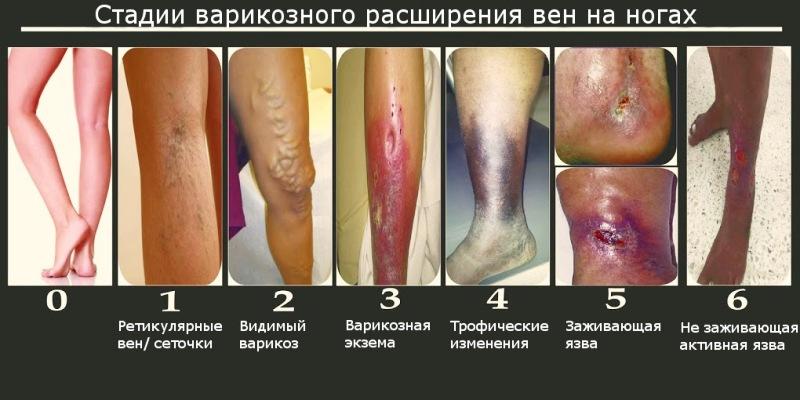 Стадии болезни вен