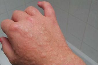 крапивница на руке