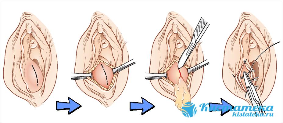 Шишка рассекается, экссудативная масса осторожно удаляется, после чего полость промывают и подшивают к слизистой оболочке