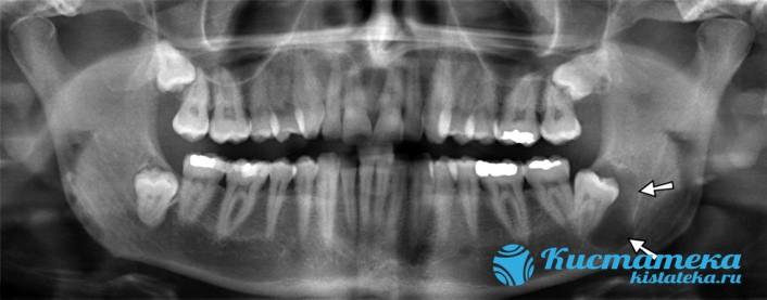 Один из видов кистозной полости появляется в результате нарушения формирования зубов