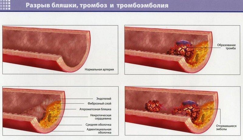 Применение БАДов для снижения холестерина и нормализации обмена липидов не гарантирует желаемый лечебный эффект.