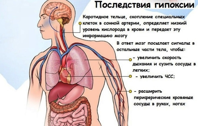 К чему может привести гипоксия