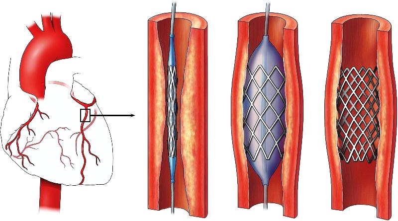 Стентирование сердечных сосудов