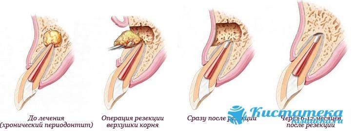 Через разрез удаляется сама опуоль и повреждённые зубные корни