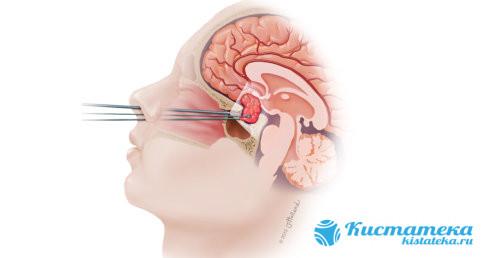 Удаление осуществляют с помощью эндоскопа через носовые пазуи