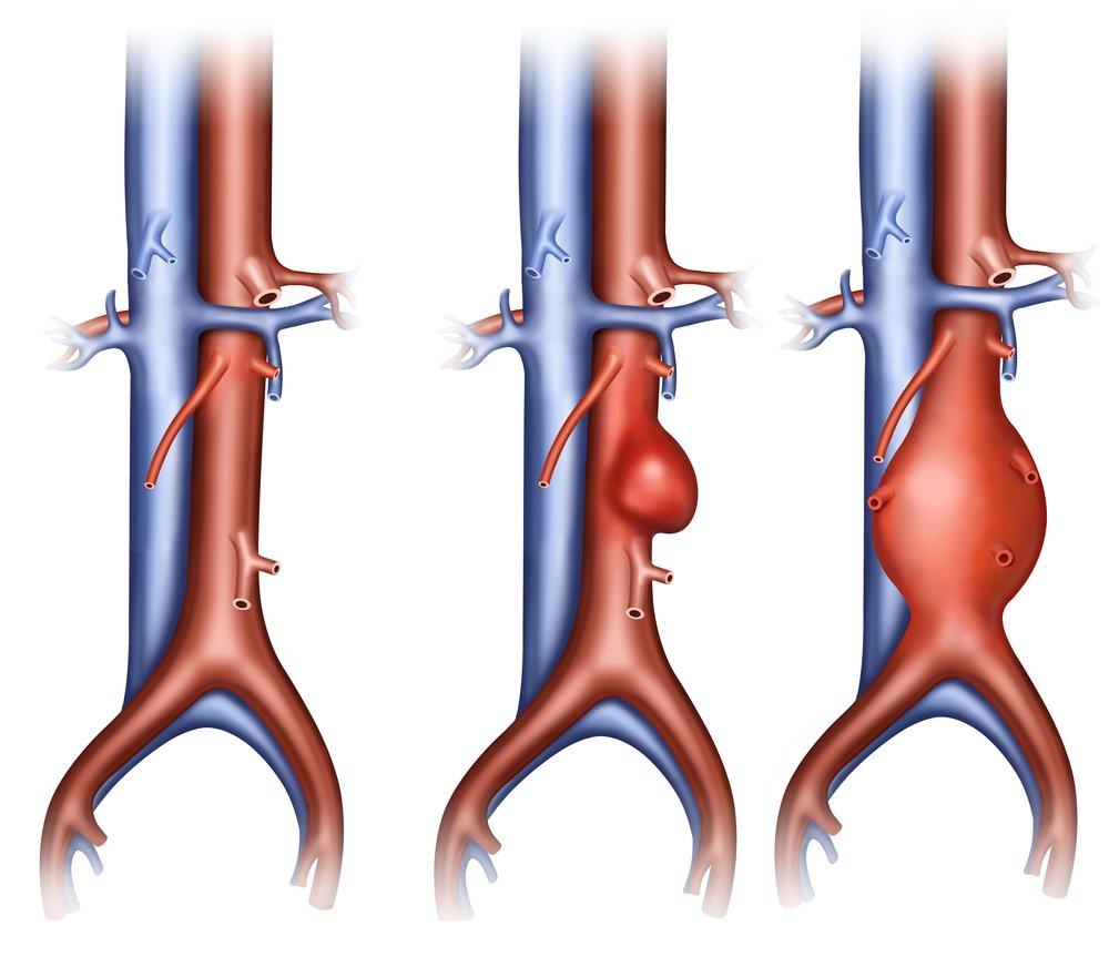 Атеросклероз грудного отдела аорты зачастую проявляется нарушениями функций головного мозга или артерий сердца