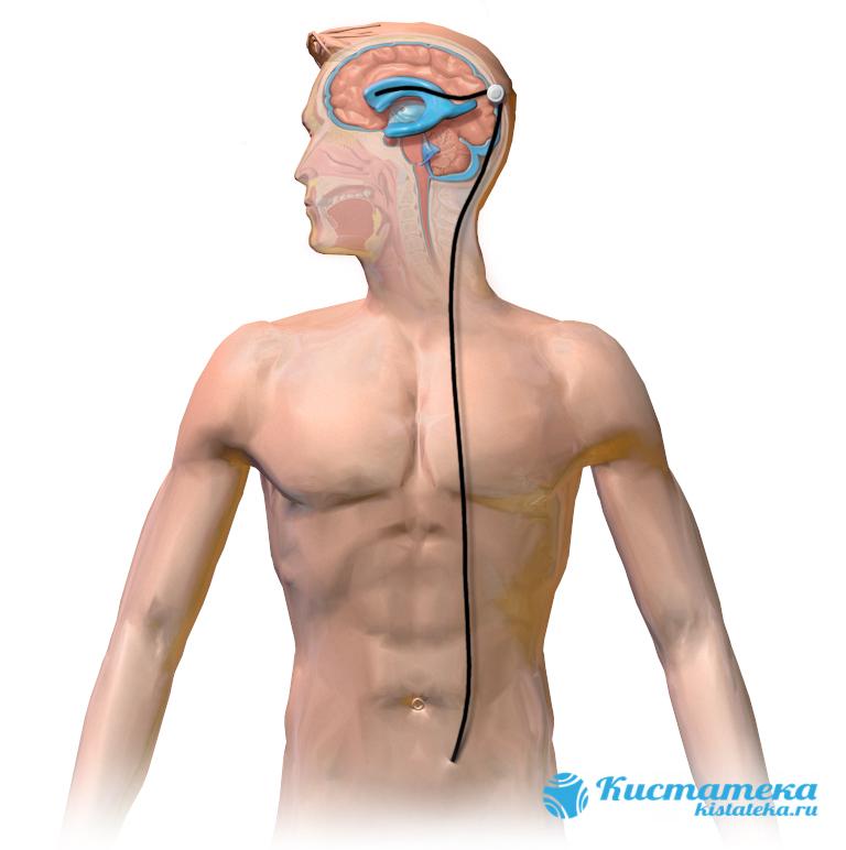Выведение избытков ликвора происодит в брюшную полость через специальный шунт
