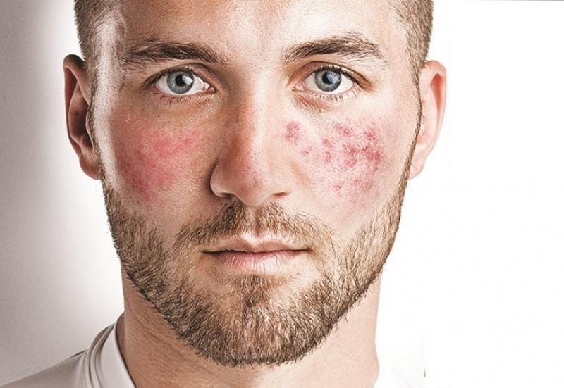 Сосудистая сеточка на лице у мужчины
