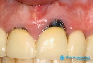 Развитие осложнений после перенесенной стоматологической болезни