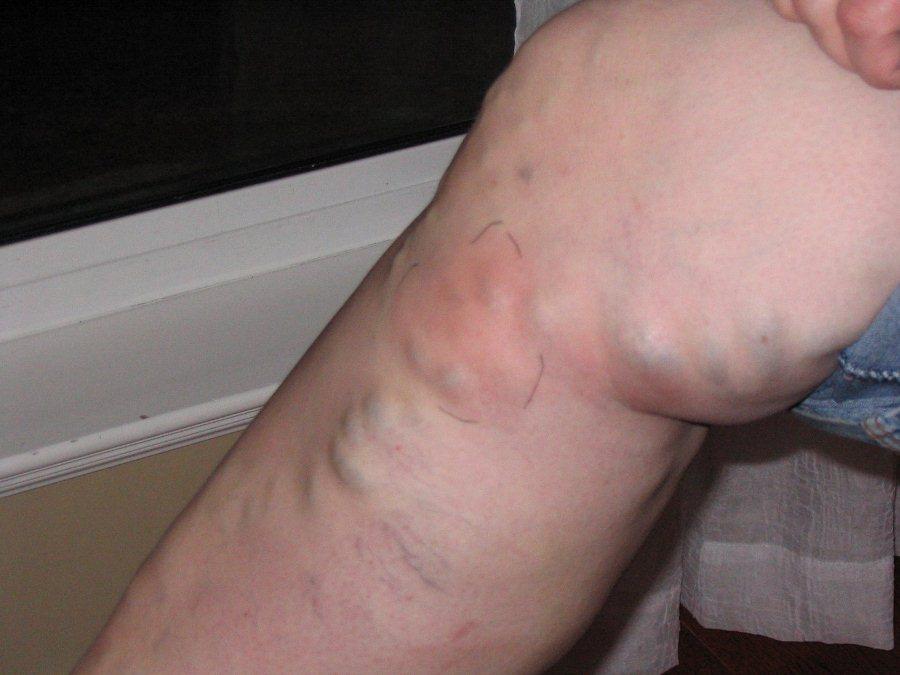 Симптомы тромбофлебита ног