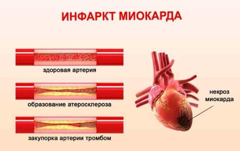 Почему происходит инфаркт