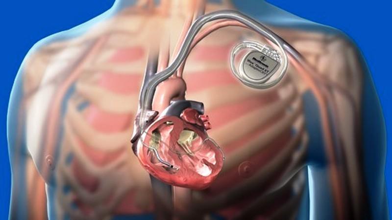 Схема установки кардиостимулятора