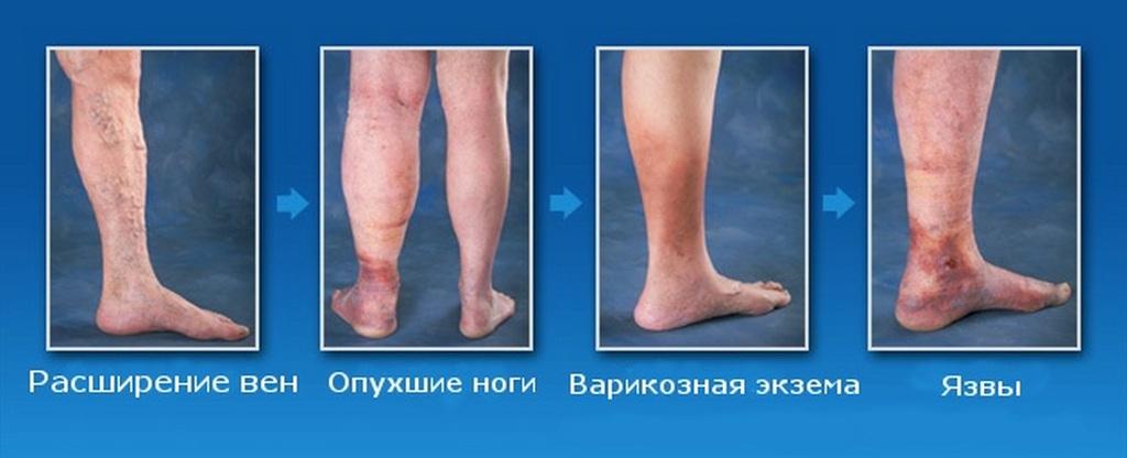 Развитие варикоза на ногах