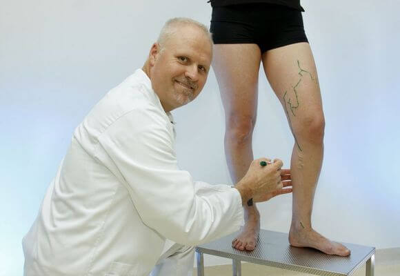 лечение варикоза ног