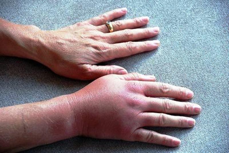 Проявление симптомов болезни на руках
