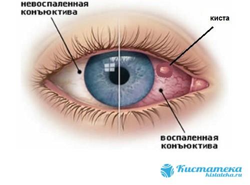 Киста на конъюнктиве глаза