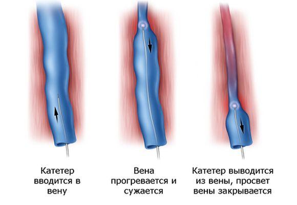 Радиочастотная абляция при варикозе