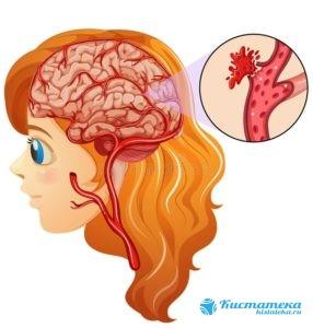 Кровоизлияния приводят к формированию капсулы