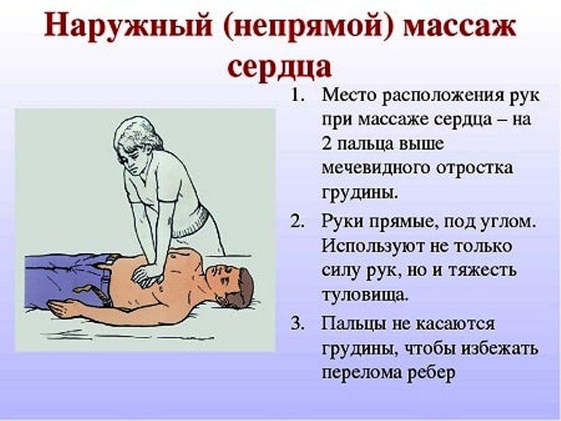 Непрямого массаж сердца
