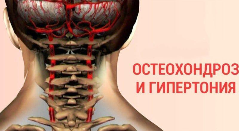 Остеохондроз и гипертония