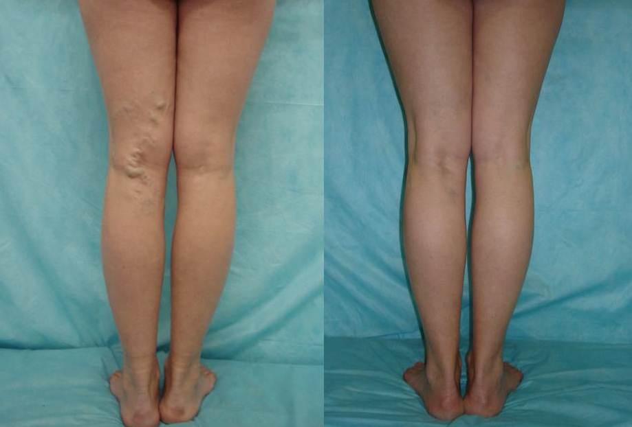 До и после склеротерапии