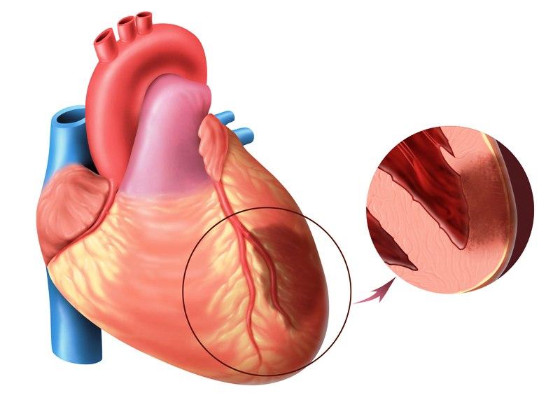 Сердечная ишемия