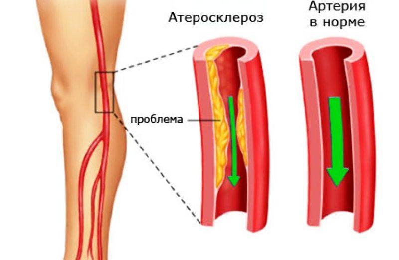 Здоровая и больная артерии